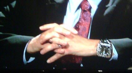 ch hands